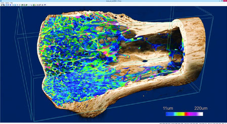 Micro-CT scan - bone