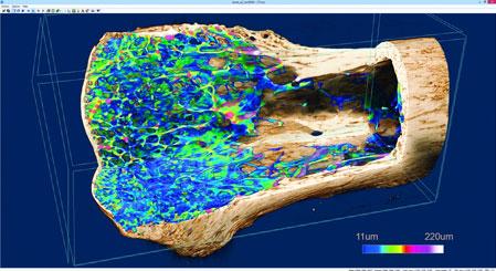 Micro-CT scan - bone