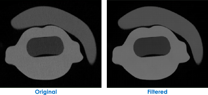 Micro-CT Image Filtering