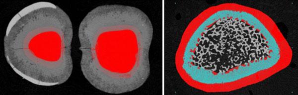 Micro-CT ROI subtraction using Bruker CTAn software