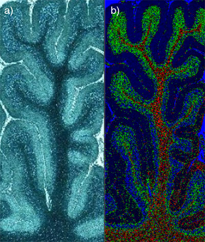 Raman image of brain tissue