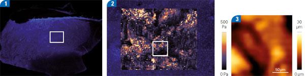 Cervix Tissue: Stiffness Mapping