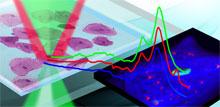 Sub-micron Infrared & Raman in Life Science