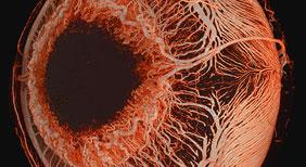 Micro-Angio-CT
