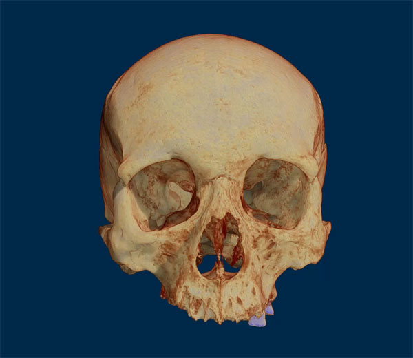 Micro-CT scan of a skull