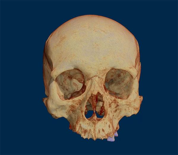 Neanderthal skull - Micro-CT 3D Scan