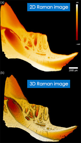 Raman image of a mandible