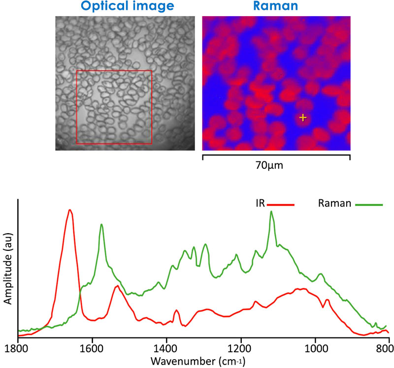 Infrared and Raman on red blood cells
