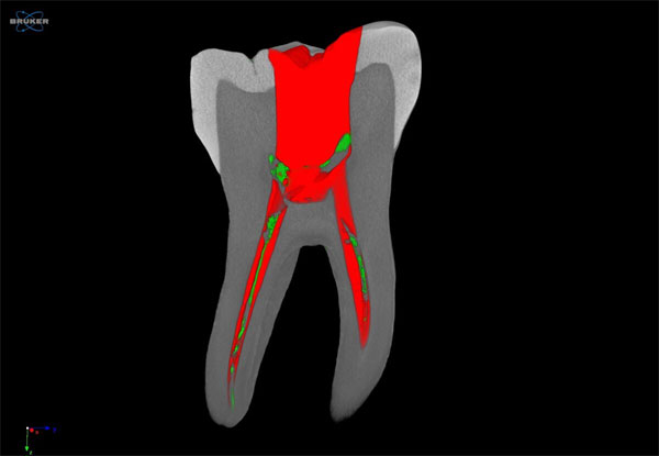 Root Canal Scan